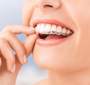 Invisalign Certified Braces   Breslau Smiles Family Dentistry